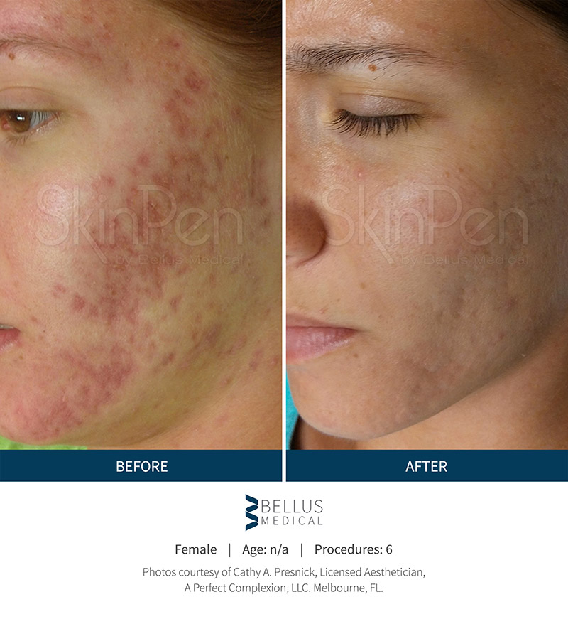 Acne Scarring Before and After - SkinPen